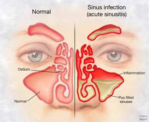 glucocorticosteroids asthma