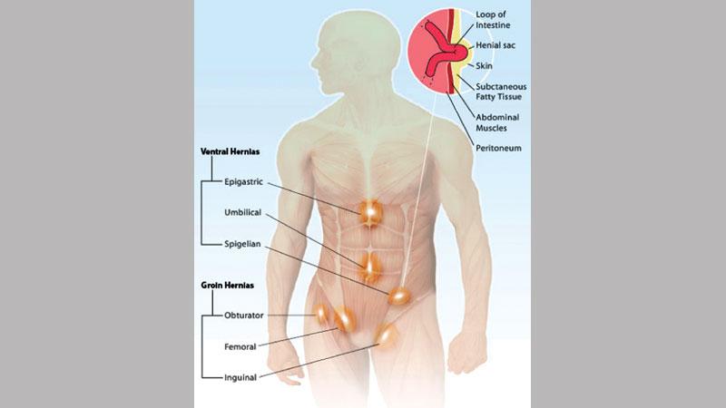Abdominal hernia | theindependentbd com