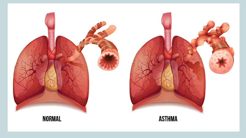 Bronchial asthma: What should we do?