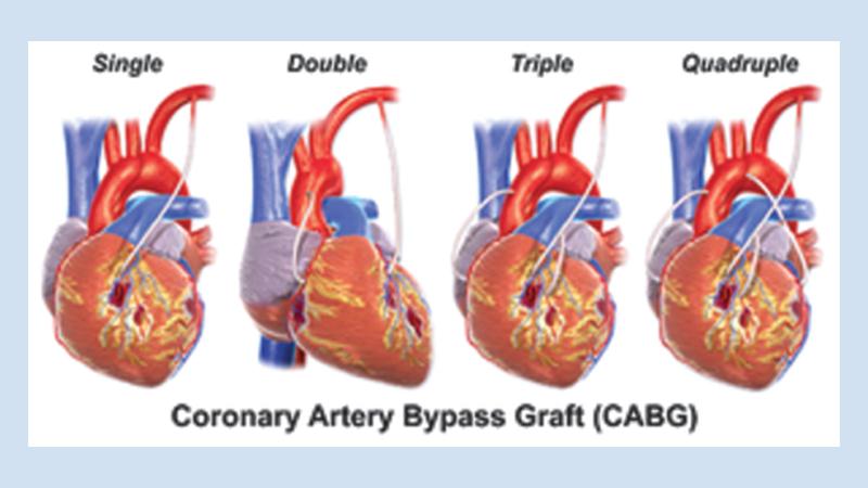 Coronary Artery Bypass Grafting (CABG) | Triad Cardiac and