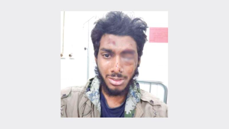 DU student Ehsan Rafiq will receive prolonged treatment
