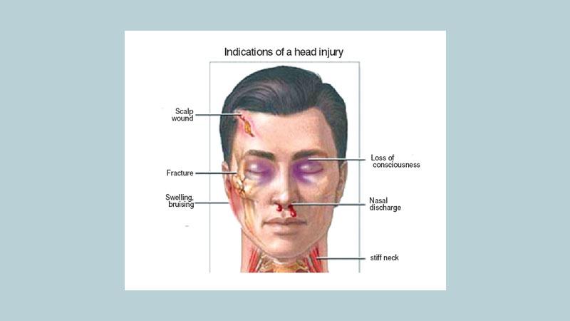 Head anatomy definition
