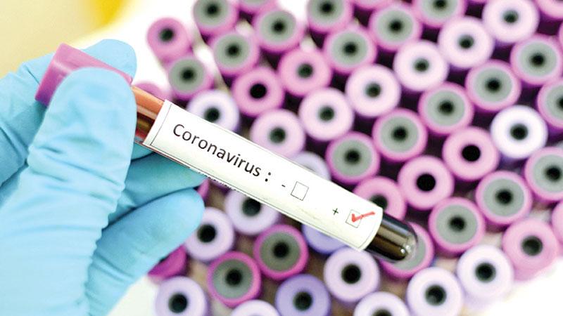The economic impacts of corona virus