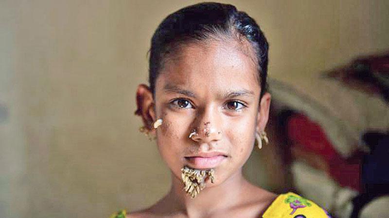 World's first 'tree girl' a Bangladeshi   theindependentbd com