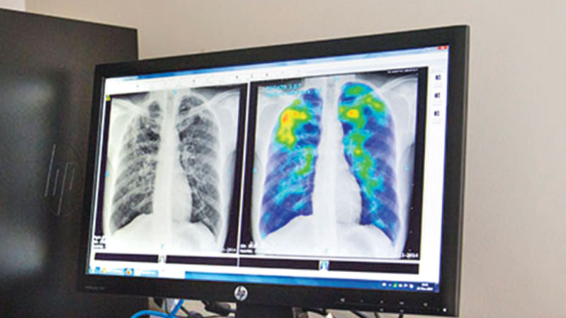 Hearing loss screening for patients with TB and diabetes urged