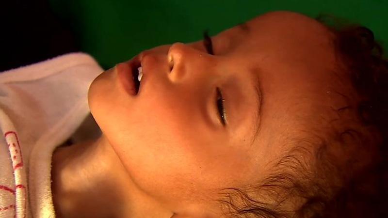 Yemen faces world's biggest famine
