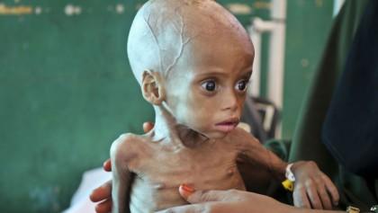 400,000 starving Yemen children face risk of death