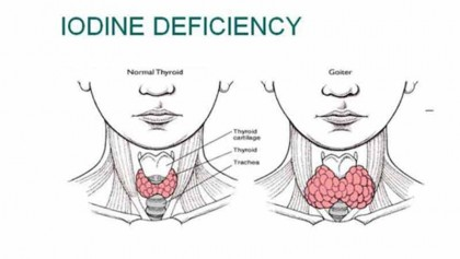 Iodine deficiency affects '6 crore in Bangladesh'