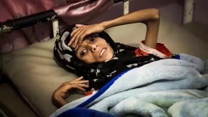 16 million Yemenis are marching towards starvation: UN