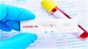 Barishal division logs 854 new Covid-19 cases