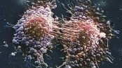 Late prostate cancer diagnosis 'worries'