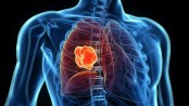 'One-third patients suffer from lung diseases'